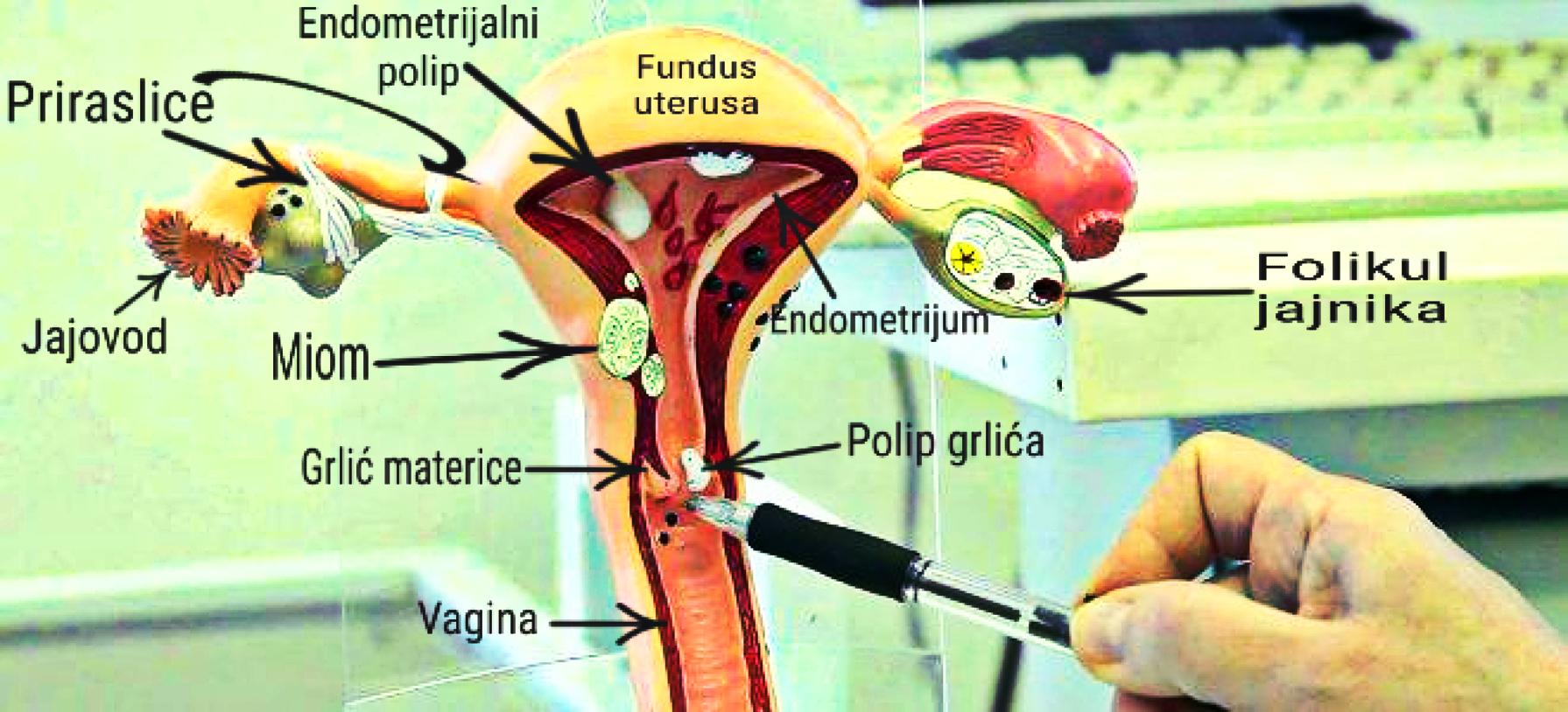 vrste ginekoloskih polipa